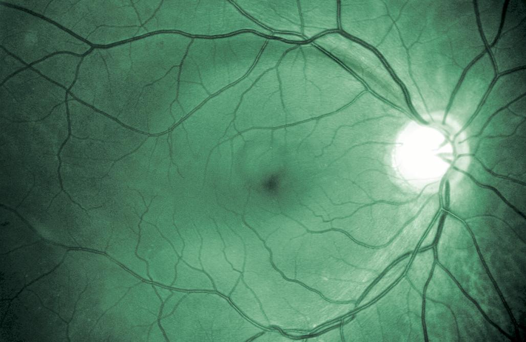 Štěrbinovitý výpadek VNV v oblasti horních temporálních cév