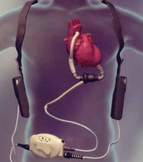HeartMate II<sup>®</sup> LVAD (Thoratec<sup>®</sup> Corp., Pleasanton, CA, USA; www.thoratec.com).