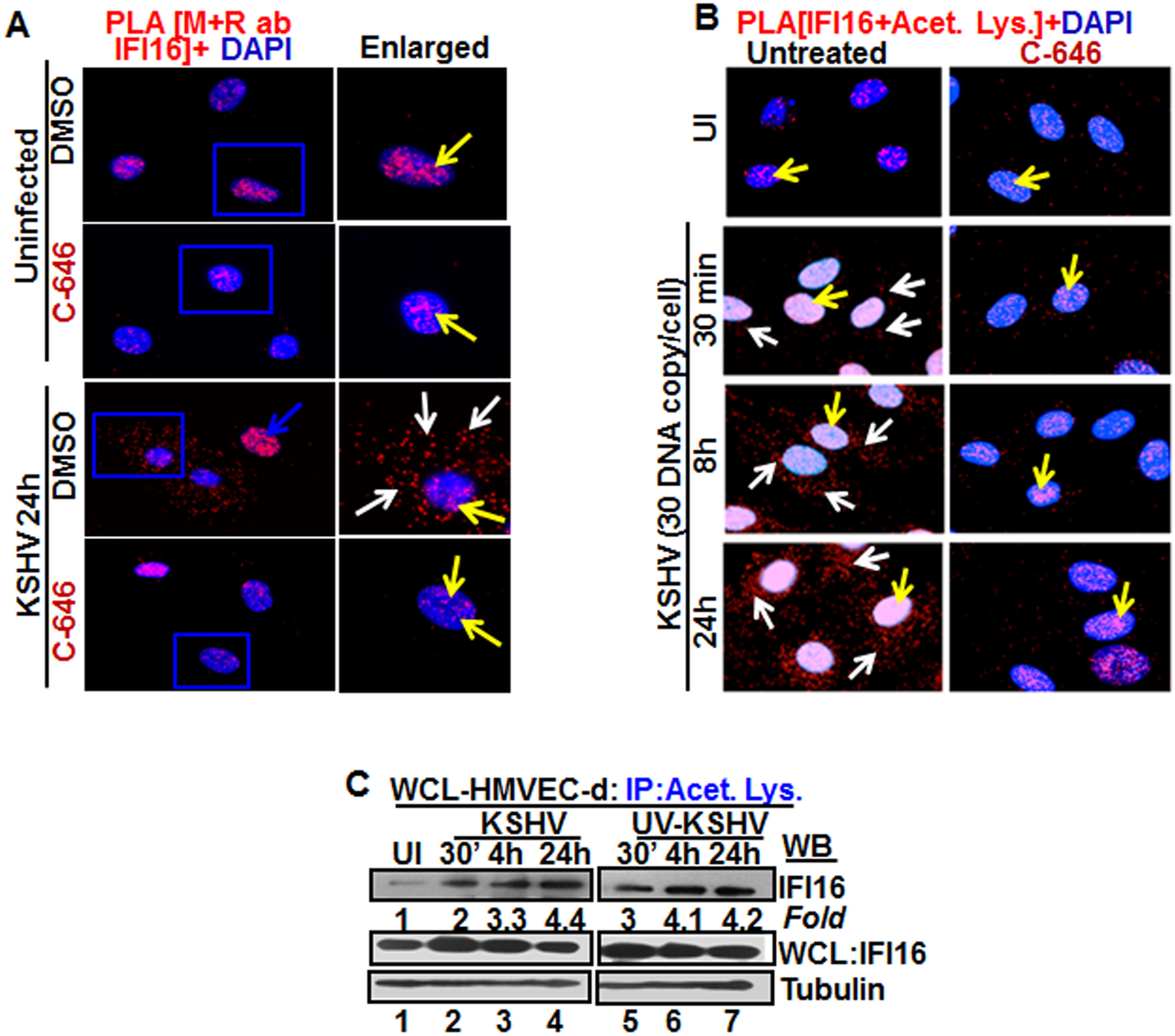 Proximity Ligation Assay (PLA) of IFI16's acetylation and cytoplasmic redistribution during <i>de novo</i> KSHV infection of HMVEC-d cells.