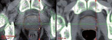 kV cone-beam CT (CBCT) – radioterapie řízená obrazem (IGRT)  Fig. 10 kV cone-beam CT (CBCT) – image-guided radiation therapy (IGRT)
