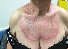 Červenofialová vyrážka na hrudníku se známkami aktivity, ale také se staršími změnami ve formě pigmentací kůže u nemocné s dermatomyozitidou
