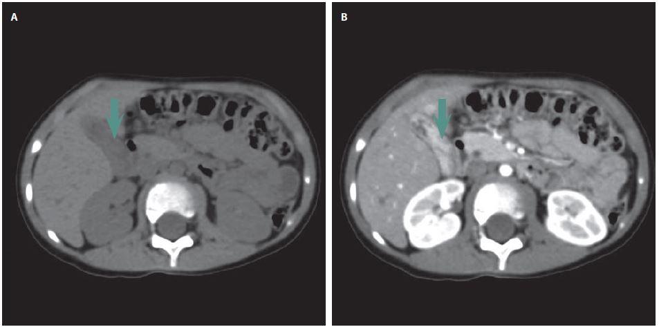 Tubulopapilární adenom. CT vyšetření – nativně a postkontrastně. Obr. 2a) Žlučník vyplněný patologickými hmotami. Obr. 2b) Postkontrastní sycení patologických hmot ve žlučníku. Fig. 2. Tubulopapillary adenoma. CT examination – plain and contrast-enhanced. Fig. 2a) Gallbladder fi lled with pathological masses. Fig. 2b) Contrast-enhanced saturation of pathological masses in the gallbladder.