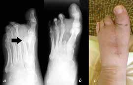 a: předoperační šikmý RTG nohy, stav po transmetatarzální amputaci II. paprsku na jiném pracovišti s osteolýzou apexu metatarzu  b: pooperační dorzoplantární RTG nohy po resekci zbytku paprsku; c: klinický snímek zhojené rány 3 roky po operaci