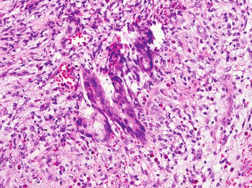 Nádorové žlázky infiltrující stěnu apendixu (HE, 240x) Fig. 4. Tumor glands infiltrating the appendiceal wall (HE, 240x)