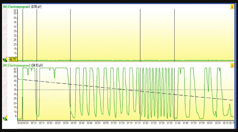 Elektromyogram: Svaly panvového dna na 5. stupeň svalovej sily.