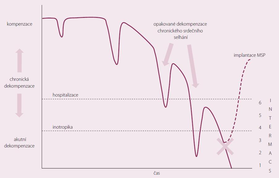 Použití MSP v průběhu chronického srdečního selhání.