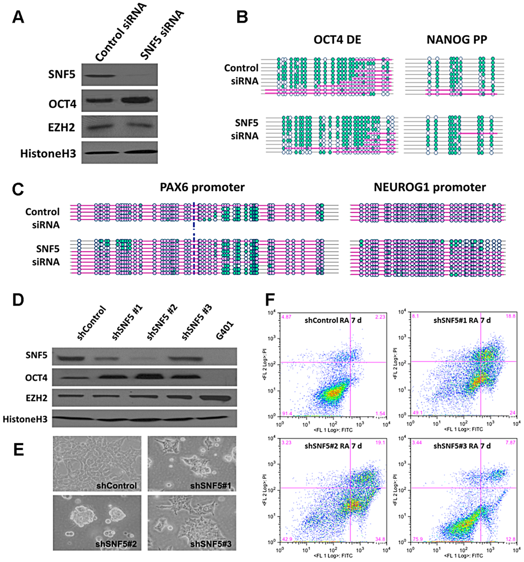 Knockdown of SNF5 enhances a stem cell like state and blocks differentiation.