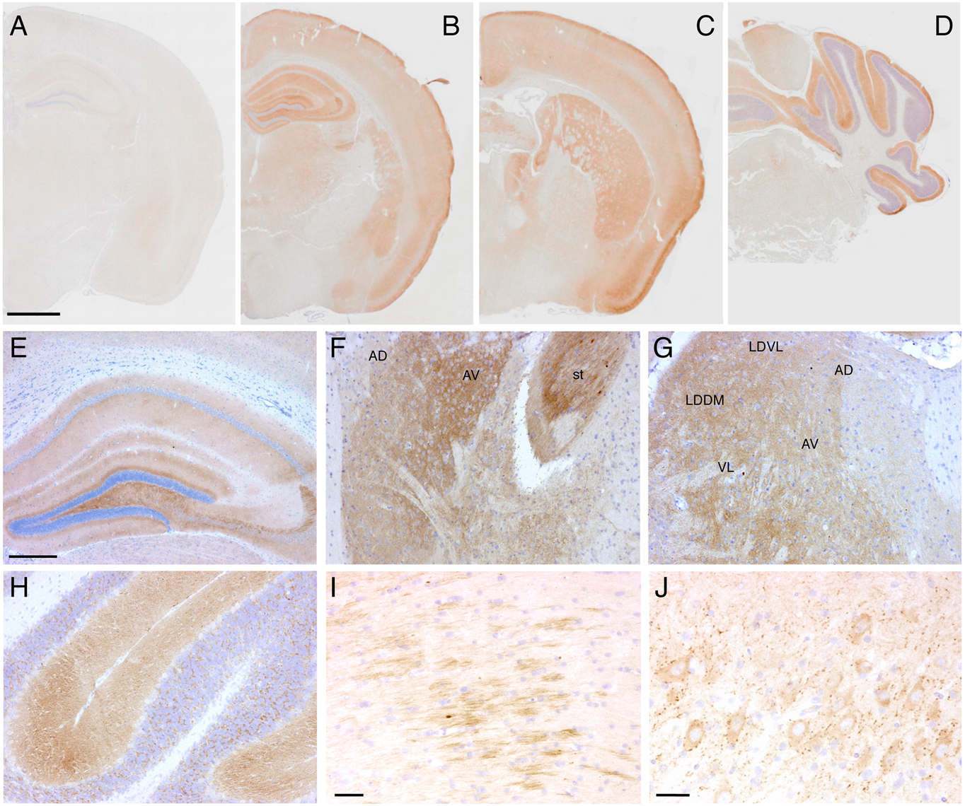Tg(FFI) mice show cerebral accumulation of protease-resistant PrP.