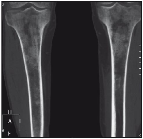 Zobrazení tibie izotropní metodou multidetektorového CT, koronární rovina. Zřetelná osteoporotická struktura s osteosklerotickými ložisky.