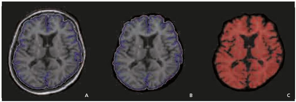 a–c. Metodika měření atrofie, určována jako brain parenchymal fraction (BPF) – poměr mozkové tkáně k objemu mozku a likvorových prostor. Zpracování obrazu je obdobné jako při měření objemu ložisek. Poté je provedeno automatické odstranění skalpu. Použití morfologických a filtračních operací má za úkol zvýraznit mozkový parenchym, který pak je definován jako oblasti o signálové intenzitě 3 500 nebo vyšší.