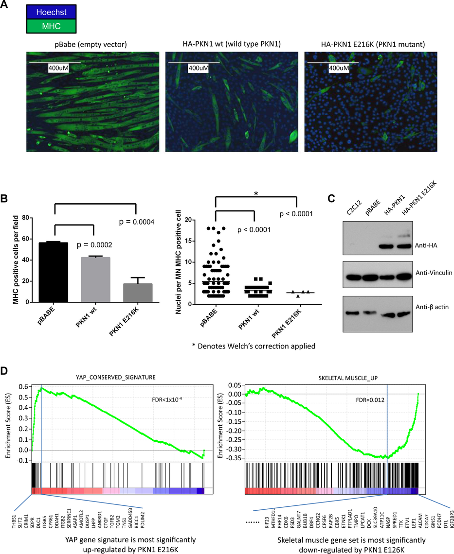 PKN1 E216K mutation prevented muscle differentiation in C2C12 mouse myoblasts.
