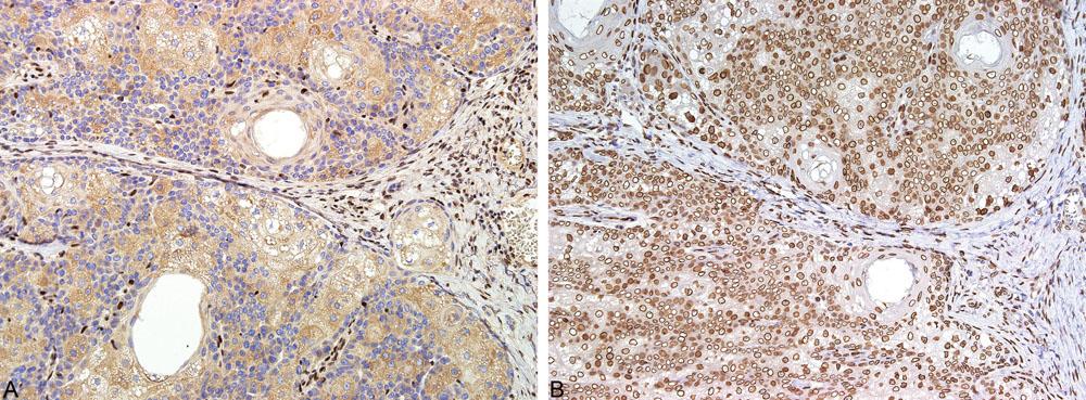 Imunohistochemické vyšetření exprese MMR proteinů: ztráta exprese MSH2 v nádorových buňkách s pozitivní interní kontrolou, tj. lymfocyty (A); exprese MLH1 proteinu nádorovými buňkami (B)