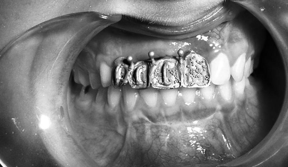 Zkouška konstrukce v ústech.