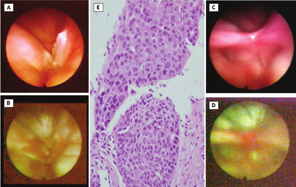 Figs. 3 AF images before and after the surgery.