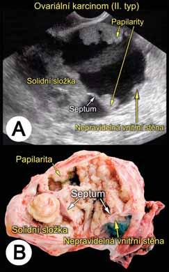 Sonomorfologické charakteristiky ovariálního karcinomu (typ II, tzv. high-grade ovariální karcinom)