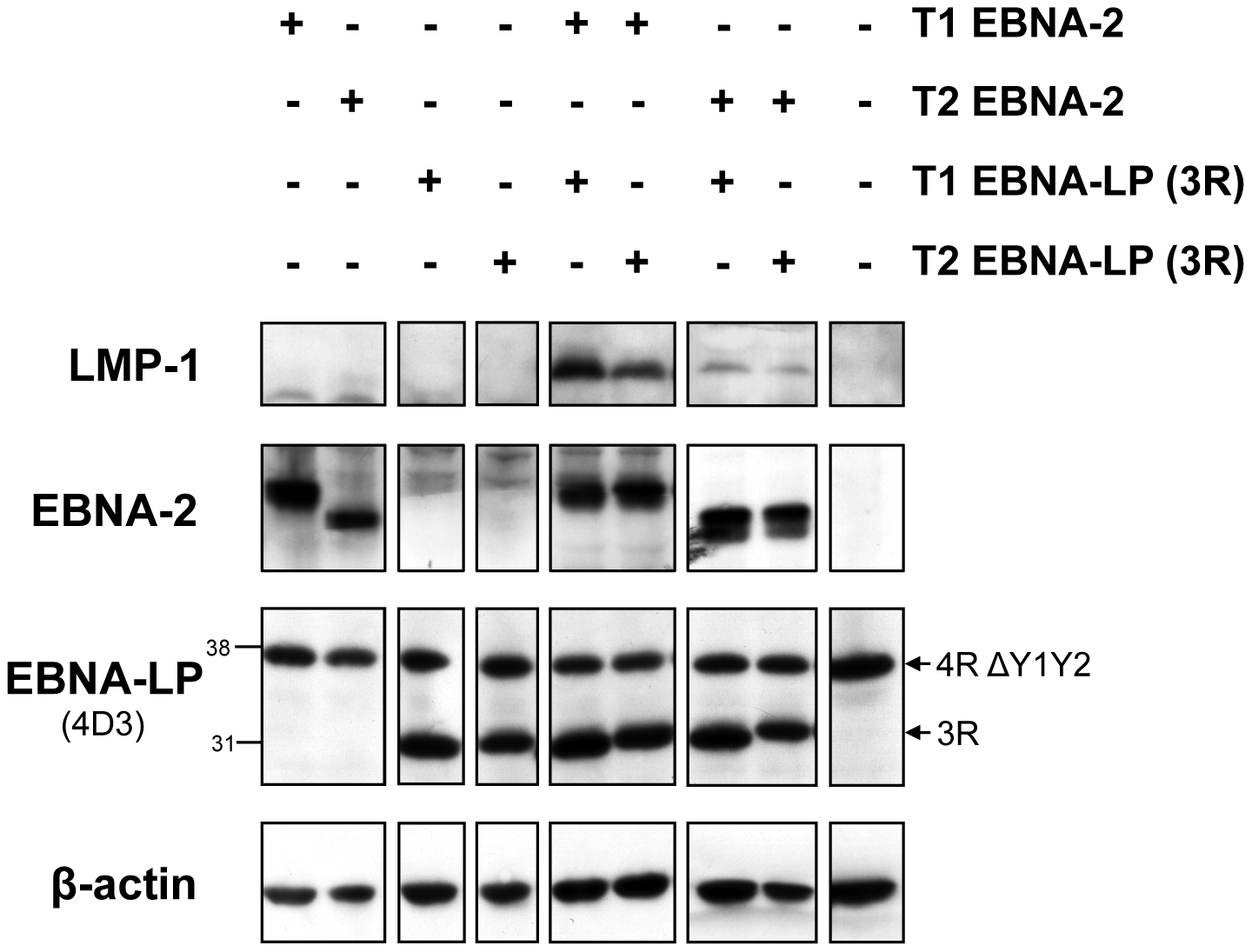 In a transient transfection assay in Daudi cells, the weaker induction of LMP-1 by type 2 EBNA-2, compared to the type 1 EBNA-2, is not affected by the EBNA-LP type.
