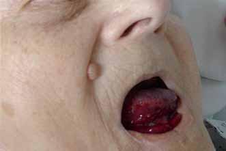Krvácení do jazyka a spodiny dutiny ústní.