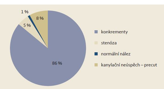 Nálezy u pacientů indikovaných pro akutní biliární pankreatitidu v roce 2012.