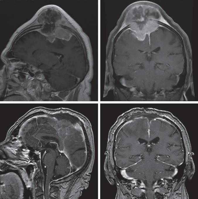Před- a pooperační snímky pacienta s anaplastickým meningeomem parietálně oboustranně.