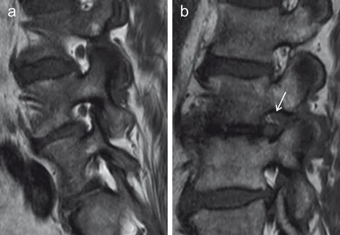 Foraminostenóza zachycená v T1 váženém obraze MR v sagitální rovině u dvou různých pacientů, omezení foramina hodnoceno dle Lurie et al [36]. Obr. 4a) Omezení neuroforamina v etáži L4–L5 lehkého stupně (redukce prostoru neuroforamina maximálně o 1/3). Obr. 4b) Foraminostenóza v etáži L2–L3 středního stupně, mírně odtlačený nervový kořen L2 je znázorněn šipkou. Fig. 4. Foraminal stenosis depicted on a sagittal T1-weighted MRI scan in two different patients, the severity of the foraminal narrowing is graded according to Lurie et al. [36]. Fig. 4a) Mild foraminal stenosis at L4–L5 level (reduction of the foraminal area no more than 1/3 of its normal size). Fig. 4b) Moderate foraminal stenosis at L2–L3 level, the mildly displaced nerve root L2 is marked by the arrow.