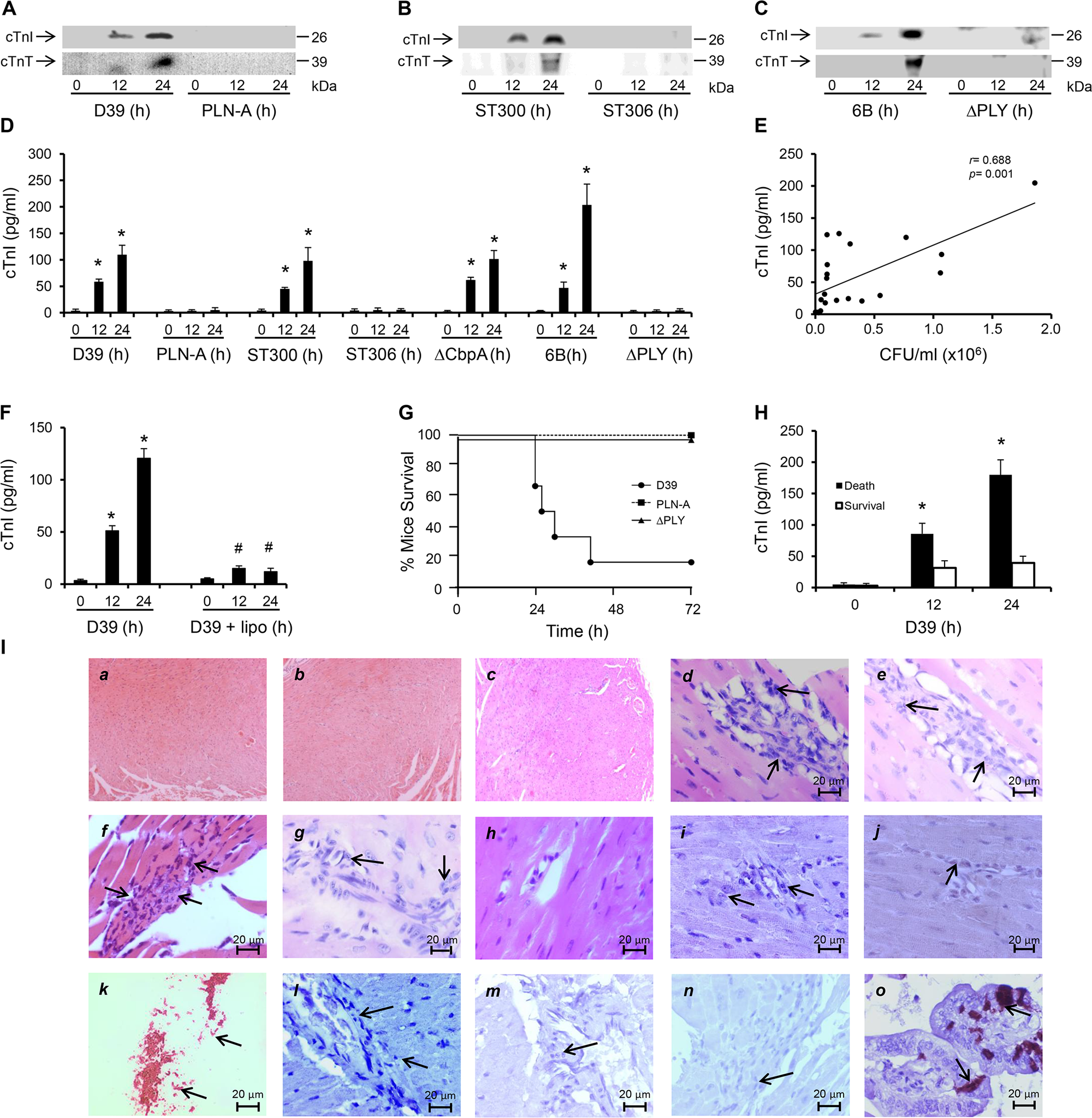 PLY-expressing but not PLY-deficient pneumococci induce cardiac injury and inflammation.