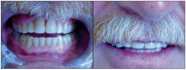 Obr. 2e, f. Stav po dostavbě zubů 11 a 21 kompozitním materiálem.