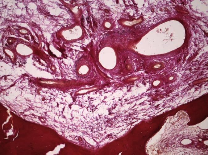Mikrofotografie venózního typu hemangiomu.