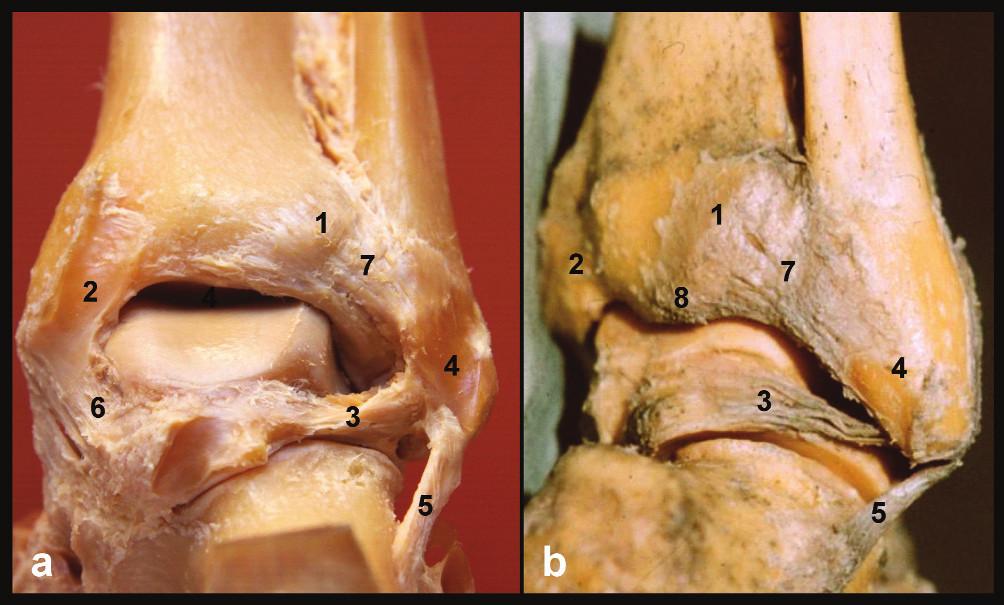 Anatomie zadní hrany tibie, pravé hlezno a – pohled zezadu, b – pohled posterolaterální, 1 – tuberculum post. tibiae, 2 – sulcus tendinis m. tibialis post., 3 – lig. tibiofibulare post., 4 – sulcus malleoli lat., 5 – lig. fibulocalcaneare, 6 – tibio-talární část deltového vazu, 7 – lig. tibiofibulare post., 8 – zadní malleolus