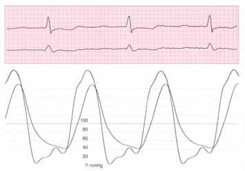 Současný záznam aortálního a levokomorového tlaku u pacienta s významnou chronickou aortální regurgitací: zvýšený enddiastolický tlak v levé komoře a nízký aortální diastolický tlak.