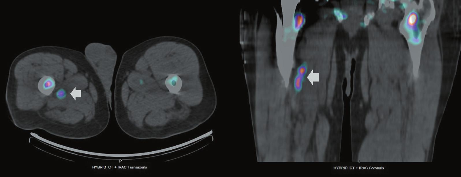 <i>Vyšetření značenými leukocyty, pozdní (24 hod) SPECT + low-dose CT, transverzální řez (vlevo) a koronární řez (vpravo).</i>