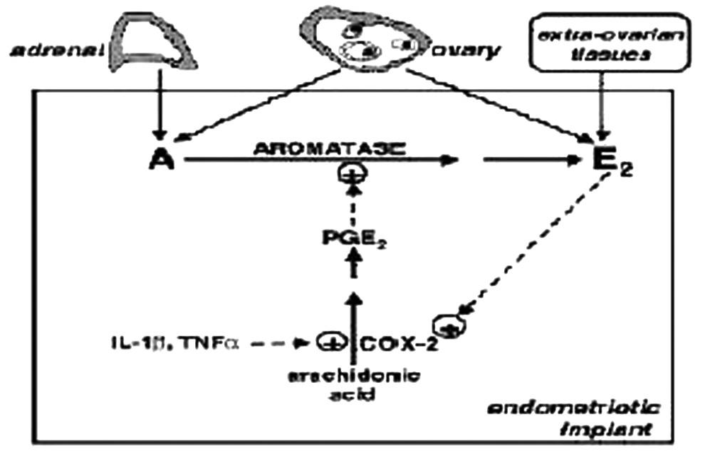 Schematické znázornenie aromatázovej aktivity v endometrióznom ložisku [3]. A- androgény, E2- estradiol