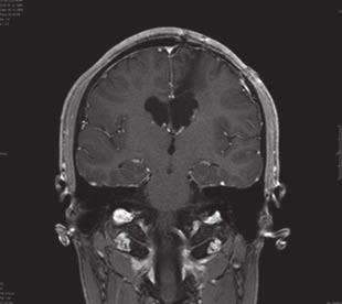 Subependymální obrovskobuněčný astocytom u 18letého pacienta.