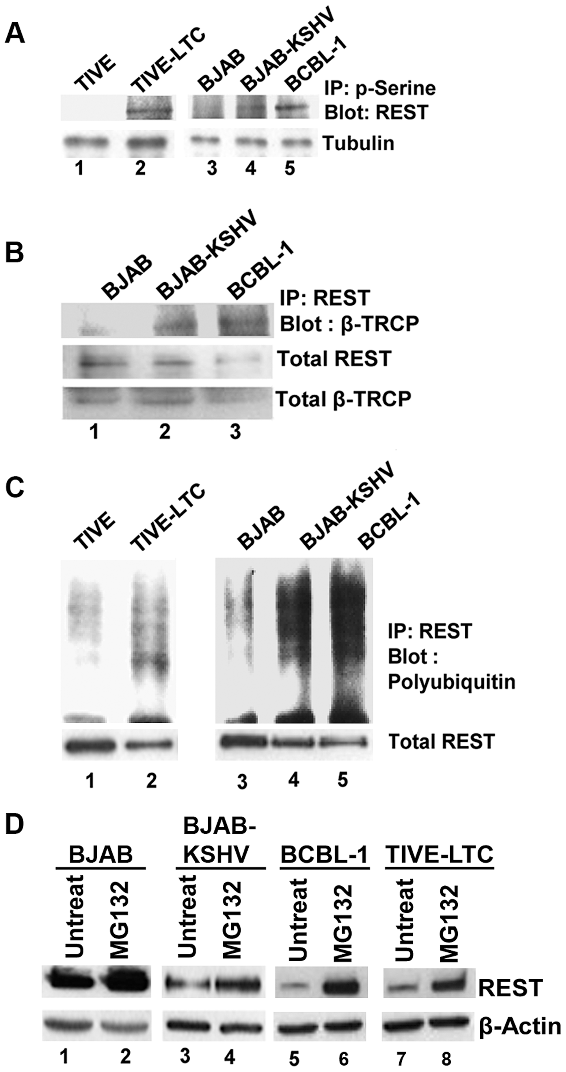 Phosphorylation and ubiquitination of REST in the cytoplasm of KSHV infected cells.
