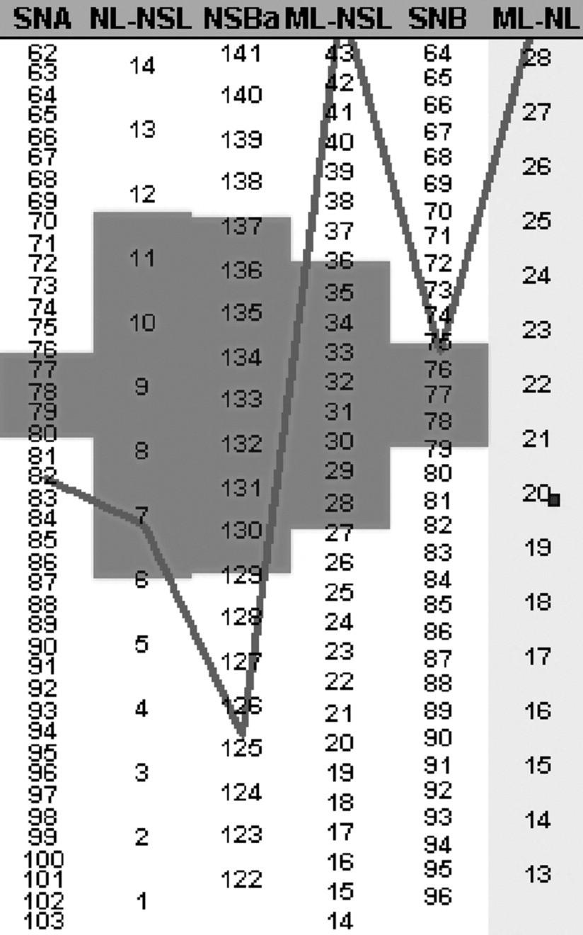 Segnerův-Hasundův box pro kazuistické sdělení 2 (PC Dent). Opět se nejedná o harmonický typ obličeje (obdobně jako u grafu 1)