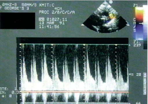 U velké dučeje vysoký diastolický tok rychle snižuje aorto-pulmonální tepenný tlakový gradient a vytváří na kontinuálním spektrálním dopplerovském zobrazení vzorec toku s hlubokými zuby pily.