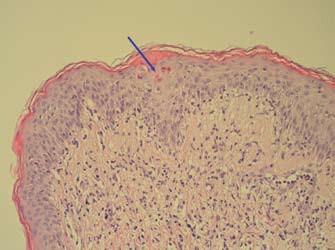 Inflamatorní lichenoidní léze s bazální spongiózou a disperzní apoptózou keratinocytů (označeny šipkou), dermální smíšený reaktivní infiltrát-bioptický vzorek kůže (HE, zvětšení 200×). Fig. 5. Inflammatory lichenoid lesions with basal spongiosis and dispersed apoptosis of keratinocytes (marked by arrow), dermal mixed reactive infiltrate – bioptic skin sample (HE, magnification of 200×).