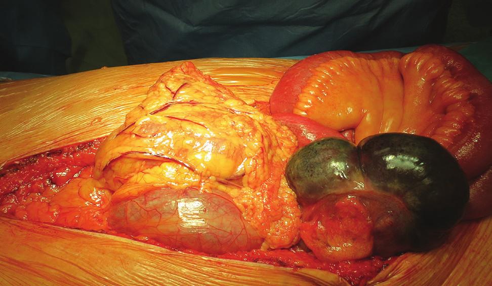 Perioperační nález ischemické gangrény céka Fig. 14: Perioperative finding of ischemic cecal gangrene