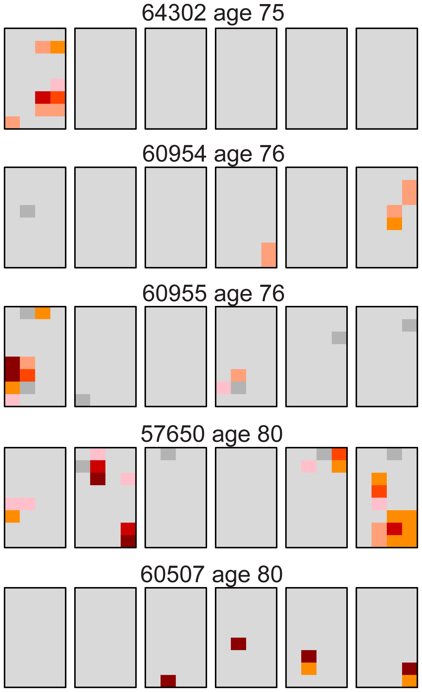 Distribution of the Apert syndrome c.755C>G mutation for the oldest age group (75–80 years).