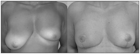Fig. 3. Frontal pre and post operative view, asymmetry grade C (440 g)