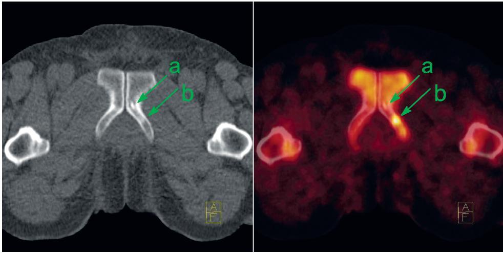 U pacienta s biochemickou recidivou CA prostaty je v CT obrazu patrná drobná osteosklerotická léze na přechodu stydké a sedací kosti vlevo (a). Původní podezření, že by se mohlo jednat metastázu, bylo vyvráceno díky mizivé akumulaci NaF. Jedná se tedy pravděpodobně o vývojový rudiment představující ostrůvek kompakty ve spongióze. Avšak dorzálně od této léze je patrné ložisko intenzivně zvýšené akumulace NaF bez specifi ckého nálezu v CT obrazu, které představuje časnou fázi reakce osteoblastů na přítomnou metastázu (b). Vlevo CT v režimu nízké dávky, vpravo jeho fúze s NaF-PET; sklopené řezy. Fig. 4. There is small osteosclerotic lesion at the attachment of left pubic and ischiadic bones on the CT (a) at the patient with biochemical recurrence. No NaF uptake excludes metastasis; the lesion represents probably rudimental benign island of cortical bone within spongiosa. On the other hand at the dorsal aspect of this benign lesion, there is a focus of intense NaF uptake without any specific sign on the CT (b). It represents early phase osteoblastic reaction to bone metastasis. Left: low-dose CT; right: fusion of low-dose CT with NaF-PET; tilted slices.