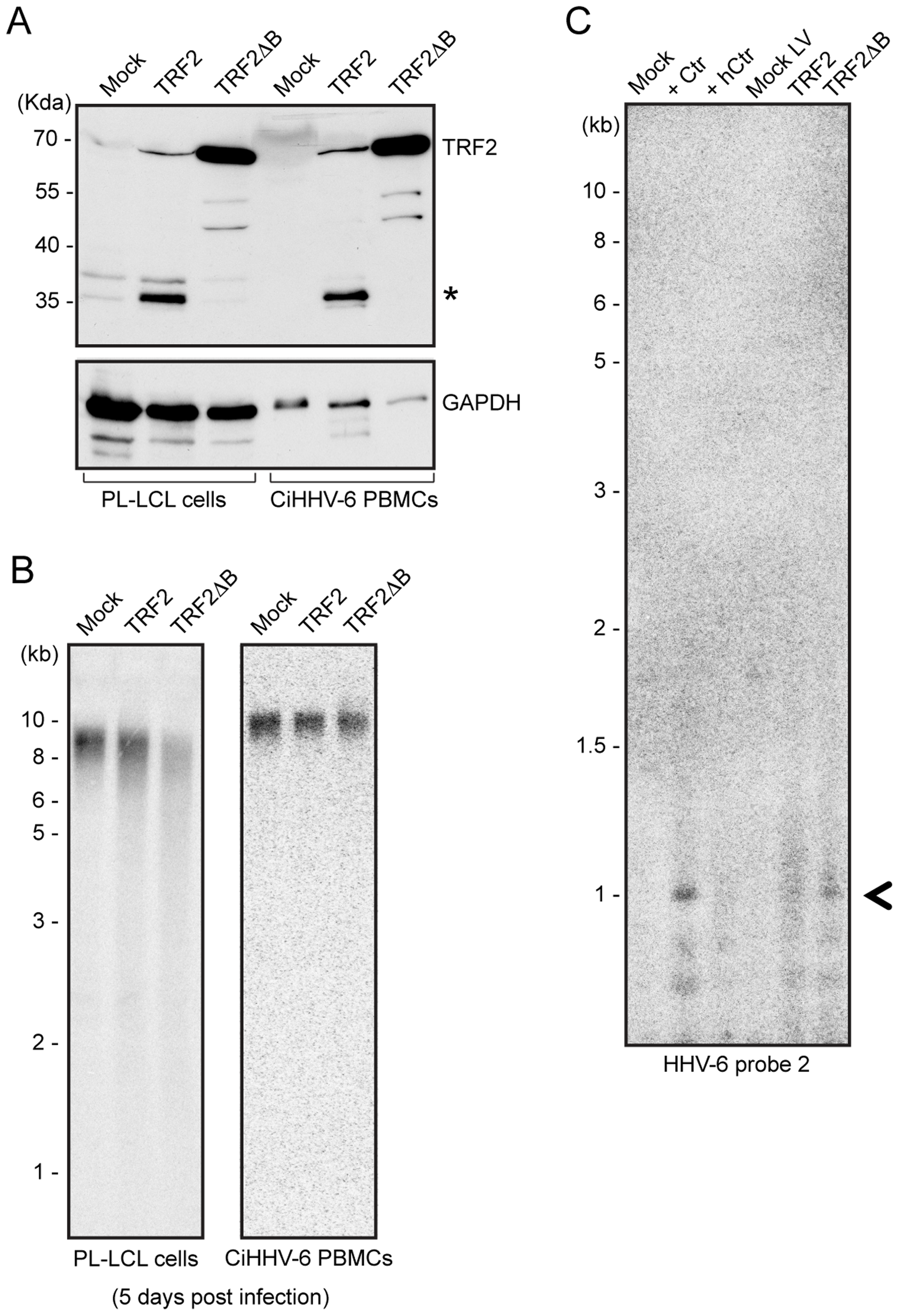 TRF2ΔB overexpression induces formation of circular HHV-6 genome in ciHHV-6 cells.