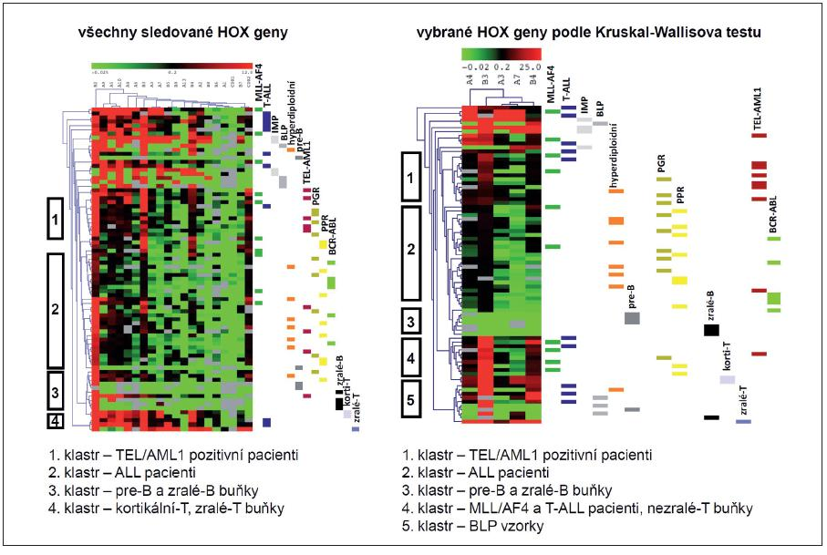 Hierarchická klastrovací analýza leukemických buněk pacientů s ALL a jejich fyziologických protějšků na základě exprese HOX genů. Sledováním exprese všech studovaných HOX genů (a) a HOX genů signifikantně rozdílných na základě analýzy Kruskalovým-Wallisovým testem (b) jsme provedli HCL u vzorků dětských ALL pacientů rozdělených podle fenotypu, genotypu a prognózy. Tyto vzorky jsme dále srovnávali s normálními fyziologickými protějšky B a T buněk. HCL podle míry shody exprese jednotlivých genů shlukuje vyšetřované vzorky do skupin (klastrů).