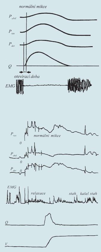 Schéma normální mikce a synchronní záznam při urodynamickém vyšetření (křivky shora: P<sub>ves</sub>, P<sub>abd</sub>, P<sub>det</sub>, EMG, průtok, mikční objem).