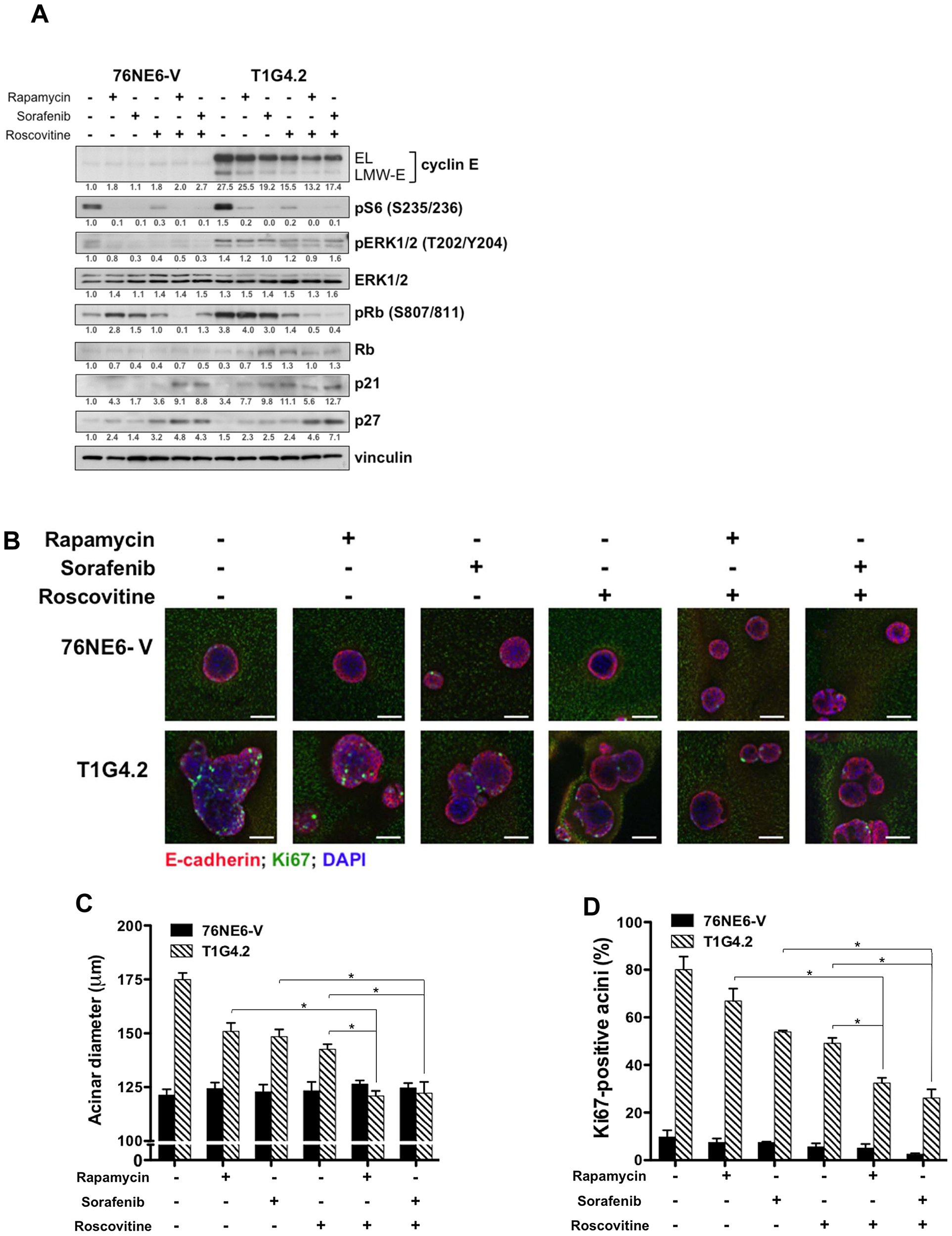 Combination drug treatment prevents induction of aberrant acinar development by LMW-E.