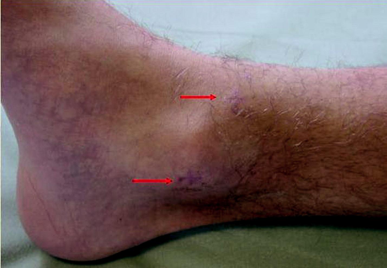 Hlezno 1 měsíc po operaci, miniinvazivní přístup, dva 1cm řezy.