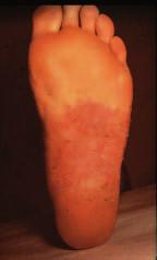 Tinea pedum: d) vezikulózní forma.