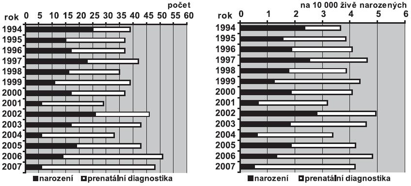 a. Absolutní počty Edwardsova syndromu v ČR, 1994 – 2007 b. Relativní incidence Edwardsova syndromu v ČR, 1994 – 2007