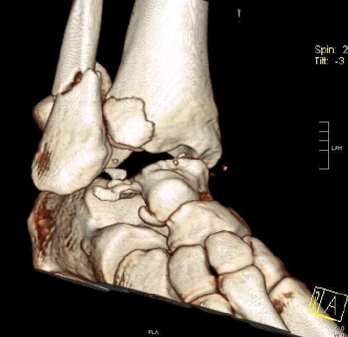Obr. 1b: Úrazové CT 3D rekonstrukce - šikmý přední pohled