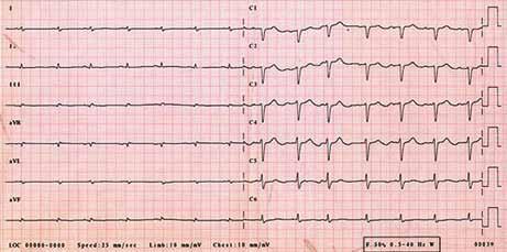 """EKG – sinusový rytmus, výrazně nízká voltáž v končetinových svodech, obraz """"pseudoinfarktu"""" přední stěny (QS V<sub>1–3</sub>)."""
