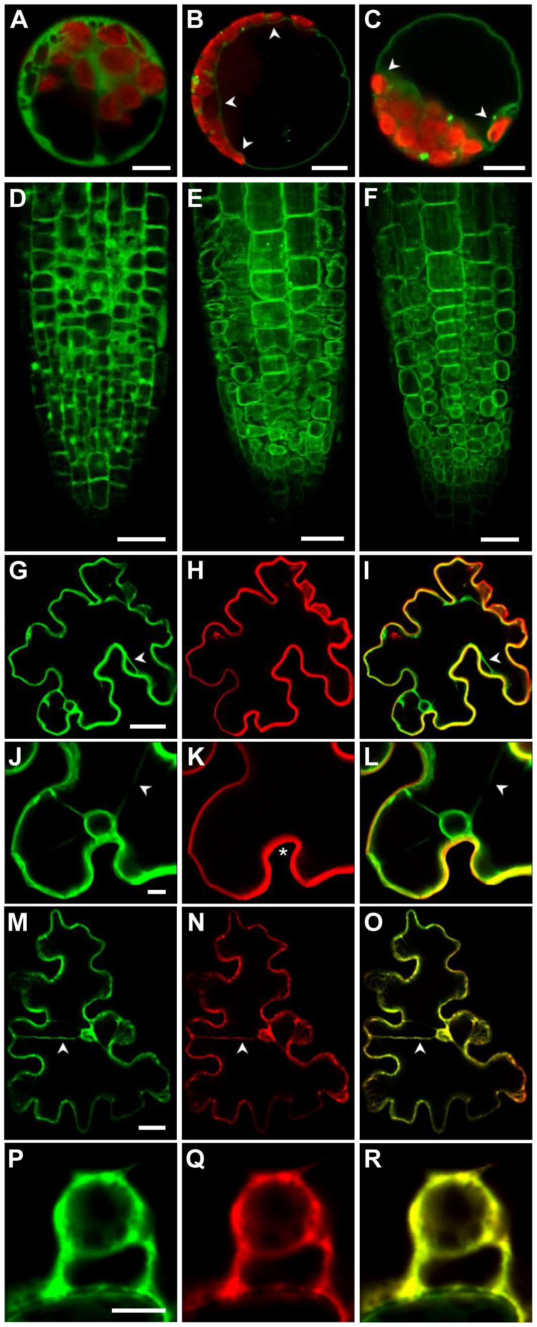 The <i>Arabidopsis</i> ZIF2 transporter localises at the tonoplast.